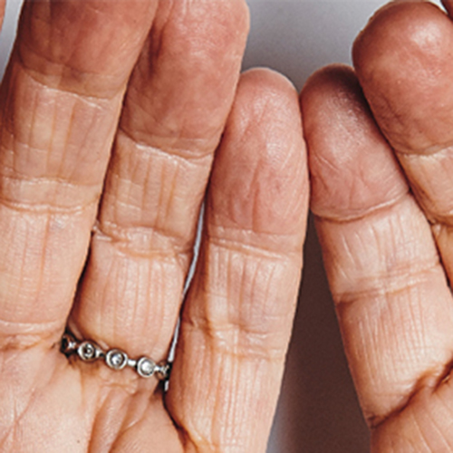 The hands of an elderly person
